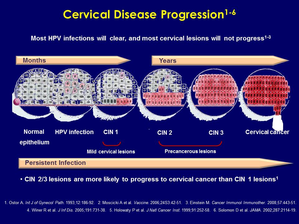hpv cancer progression