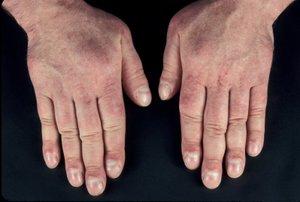 Myxoedeem: afvalophoping huid, bulten door ...