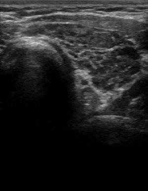 Imaging Of Thyrotoxicosis